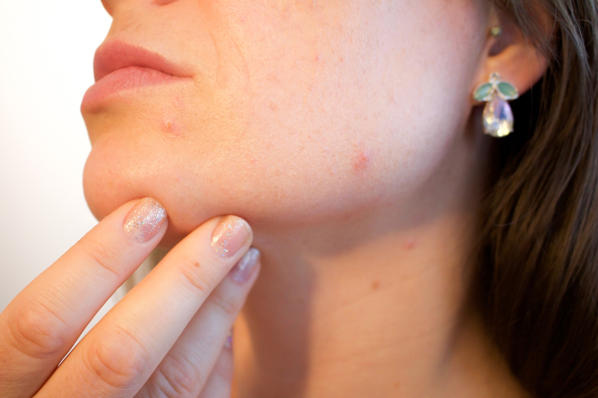 How To Treat Pimple